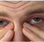 آشنایی با علل خارش چشم و راهکارهای درمانی